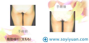日本高柳进医生腿部吸脂案例