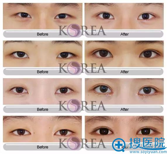 韩国KOREA整形医院双眼皮手术真人前后对比照片