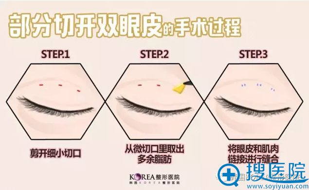 韩国KOREA整形医院双眼皮手术过程图