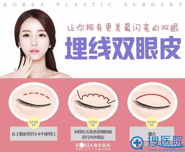 韩国KOREA整形医院埋线双眼皮手术过程图解