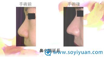 日本高柳进医生鼻中隔延长案例