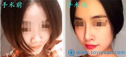 衡阳华美隆鼻后失败修复第一次隆鼻效果对比