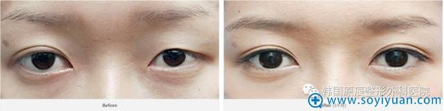 韩国原辰整形医院双眼皮不对称修复案例
