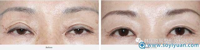 韩国原辰整形医院双眼皮疤痕明显修复案例