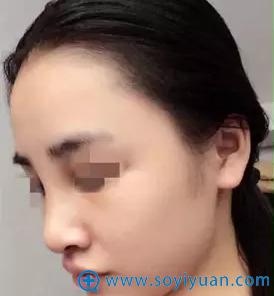 衡阳华美隆鼻后失败修复术后第四天鼻部侧面效果
