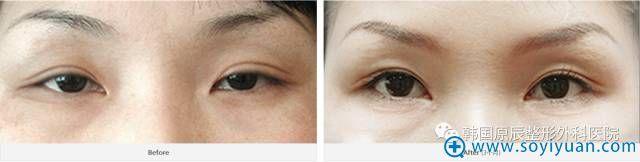 韩国原辰整形医院双眼皮线条粗修复案例