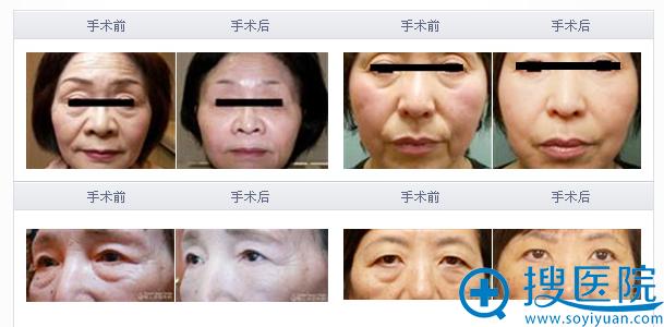日本圣心整形医院部分面部整形手术案例展示: