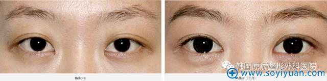 韩国原辰整形医院双眼皮线条过宽修复案例