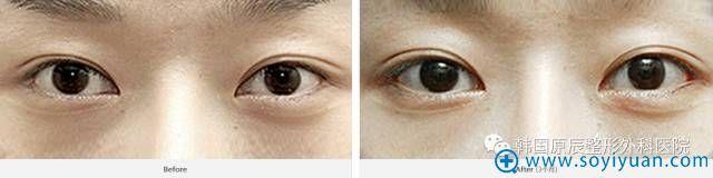 韩国原辰整形医院双眼皮脱落修复案例