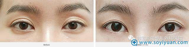 韩国原辰整形医院双眼皮手术过宽可以矫正案例