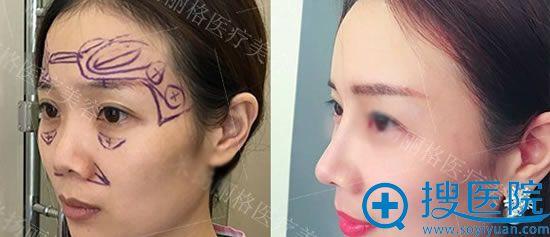 重庆联合丽格鼻部整形案例效果图