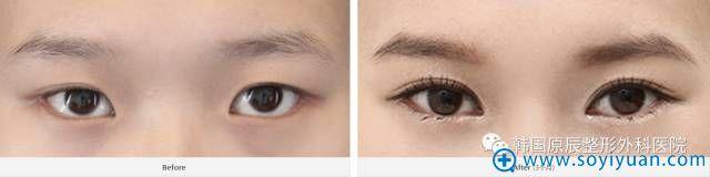 韩国原辰整形医院双眼皮左右不对称修复案例