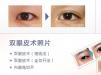 日本圣心整形医院双眼皮+黑眼圈松弛整形价格表 手术案例展示