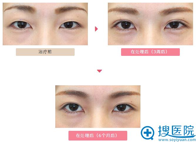 日本大冢整形双眼皮案例