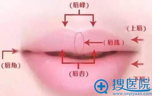 唇珠整形怎么样做的?北京八大处整形王克明详解三种方案对比
