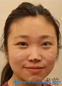 上海颜范鼻整形+自体脂肪填充案例术前分析