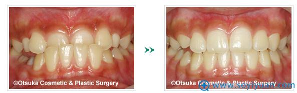 大塚美容形成外科齿科牙齿矫正案例: