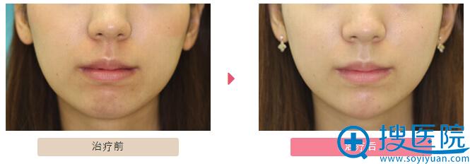 大塚美容形成外科齿科下巴轮廓整形案例: