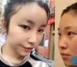 上海颜范鼻整形+自体脂肪填充案例 不磨骨也能拥有精致脸庞