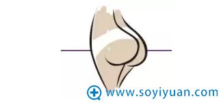臀部脂肪堆积型示例