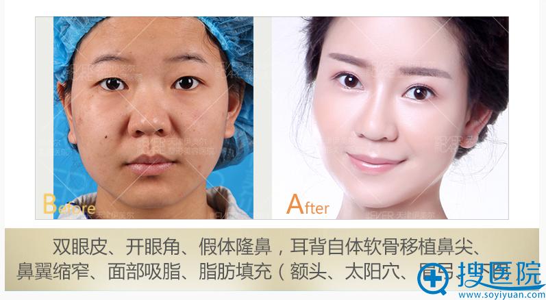 天津伊美尔整形医院双眼皮+隆鼻+面部吸脂+面部填充案例