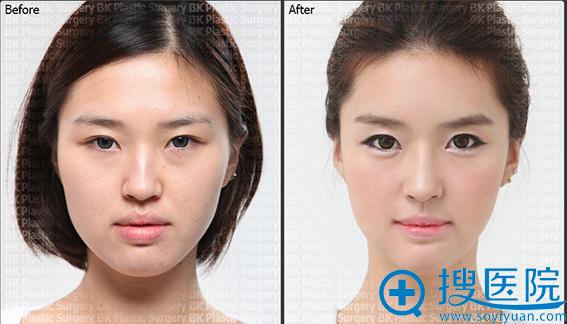 韩国BK整形医院颜面轮廓整形案例