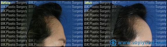 韩国BK整形医院额头脂肪移植案例