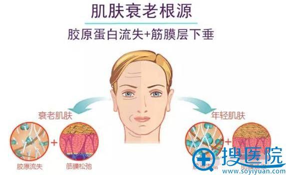 """被称为""""面部支架""""的SMAS筋膜层位置示意图"""