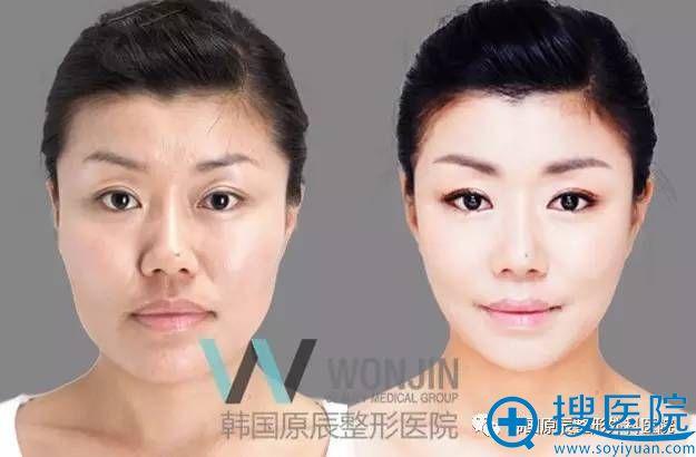 韩国原辰整形外科医院下巴整形真人案例