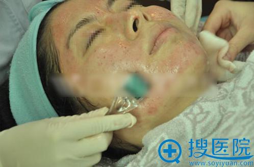 微针治疗过程