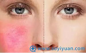 正常皮肤和敏感肌对比
