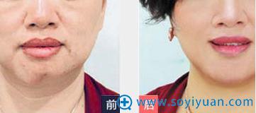 宜昌亚太假体变形隆下巴手术失败修复