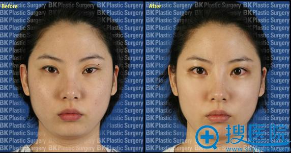 韩国BK整形医院双眼皮修复案例