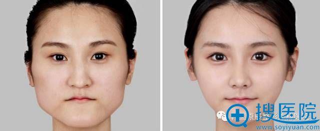 韩国原辰整形外科医院下巴整形对比照片