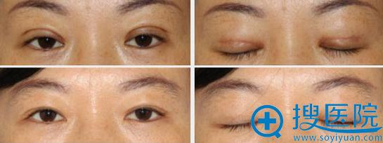 宜昌亚太疤痕过重双眼皮手术失败修复