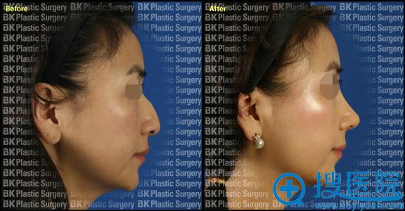 韩国BK整形医院鹰钩鼻整形案例