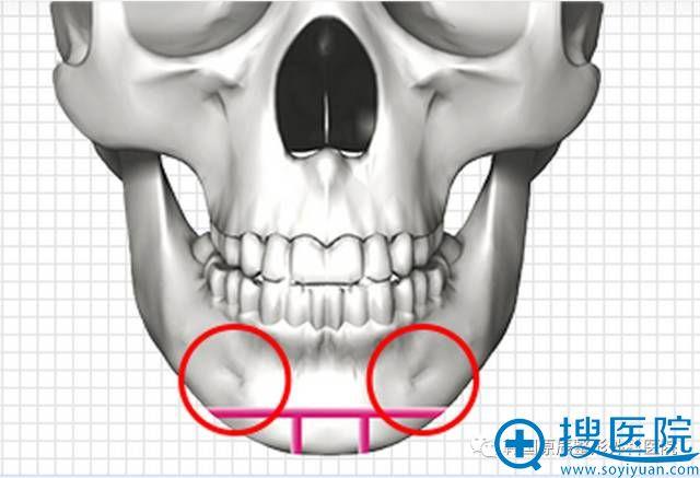 韩国原辰整形外科医院下巴整形3d手术方法演示