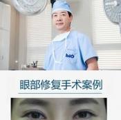 """韩国BIO整形曹仁昌眼睛修复案例对比图 """"亚洲眼王""""名不虚传"""