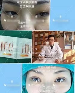 天津华美整形周茂华教授讲述做双眼皮手术恢复时间多长