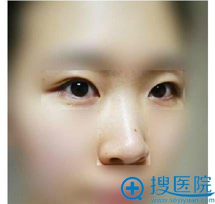 【 温州艺星整形医院揭秘】7天拆线后鼻子能恢复到什么程度?