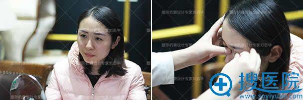 北京联合丽格整形专家刘志华接受咨询