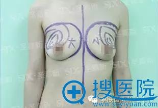 陈丽丽胸部填充方案