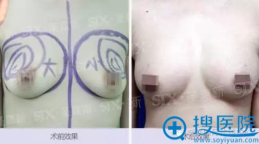 陈丽丽自体脂肪隆胸术前术后效果对比