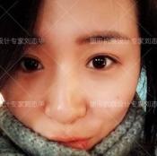 北京联合丽格整形专家刘志华微创小切口双眼皮真实案例效果图