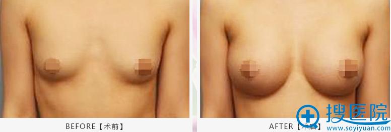 北京京韩乔氏脂肪伞丰胸术案例对比