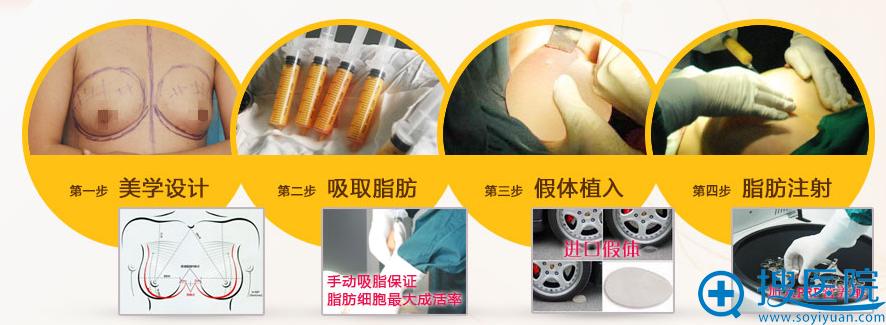 脂肪伞丰胸术流程