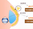 北京京韩乔爱军GR专利之脂肪伞丰胸术 胸部由A到D自然成形