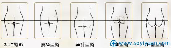 北京京韩整形专利之OMR自体脂肪复合层次丰臀