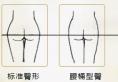 北京京韩整形之OMR自体脂肪复合层次丰臀