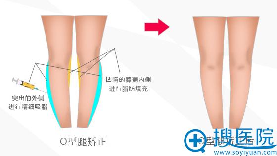 北京京韩O型腿矫正原理
